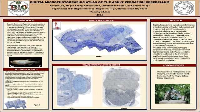 Digital microphotographic atlas of the adult zebrafish cerebellum