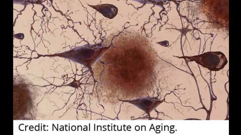 Systems Biology Advances Alzheimer's Research