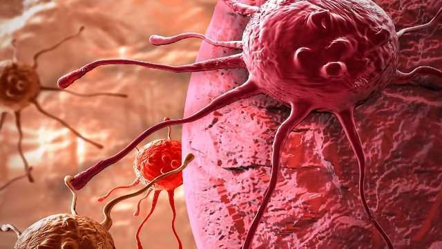 KDM5 Enzymes Implicated in Cancer Initiation, Spreading