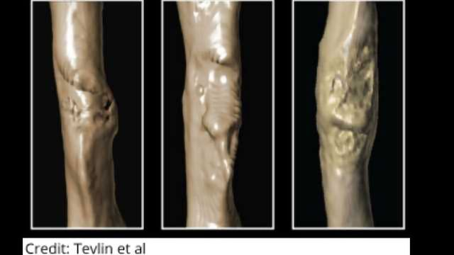 Enhancing Bone Healing in Diabetics
