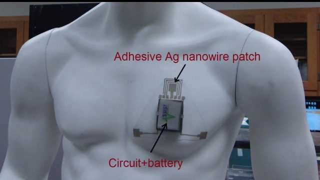 Wearable Sensor to Monitor a Person's Skin Hydration Has Been Developed