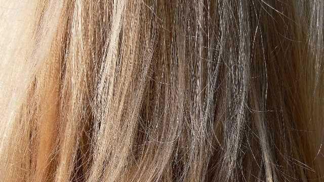 Diagnosing Cushing Syndrome with Hair Analysis
