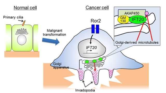 IFT20 Protein Helps Cancer Cells to Invade