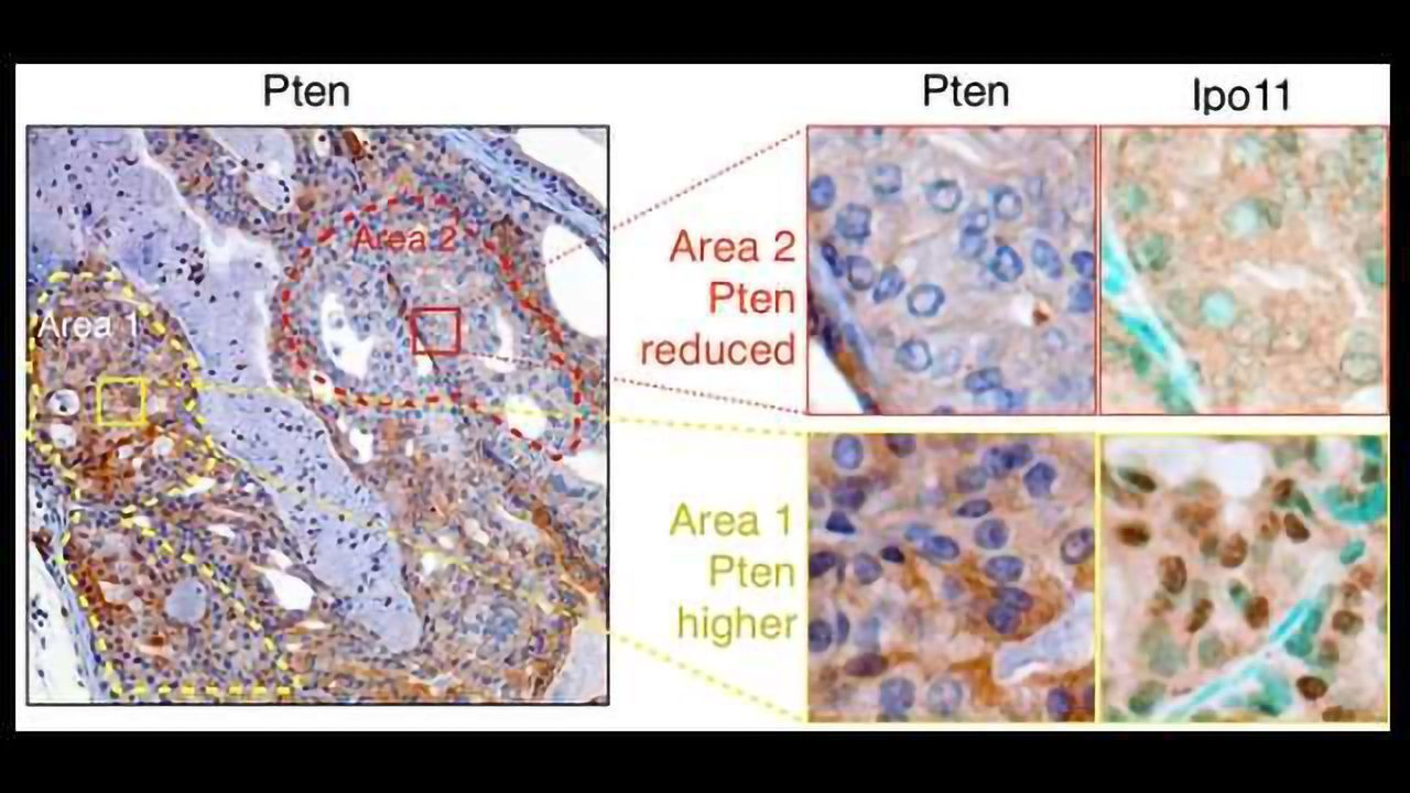 Achilles Heel of Cancer Preventing Protein Discovered