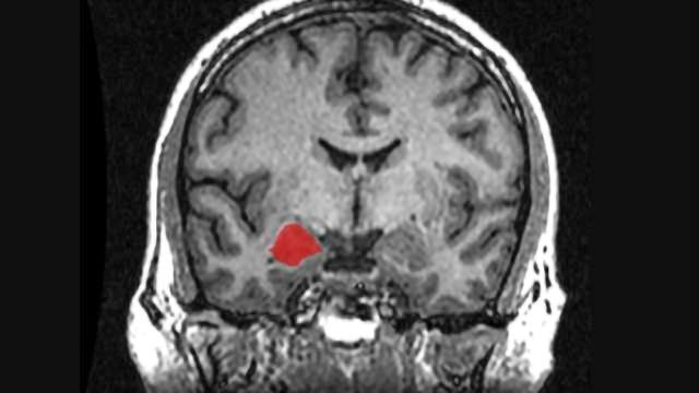 Maturing brain flips function of amygdala in regulating stress hormones