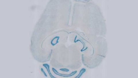 Study Blocks Multiple Sclerosis Relapses in Mice