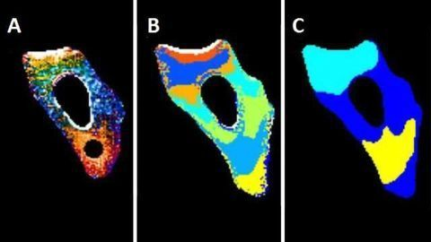 Observing how unfolded proteins move in the cell