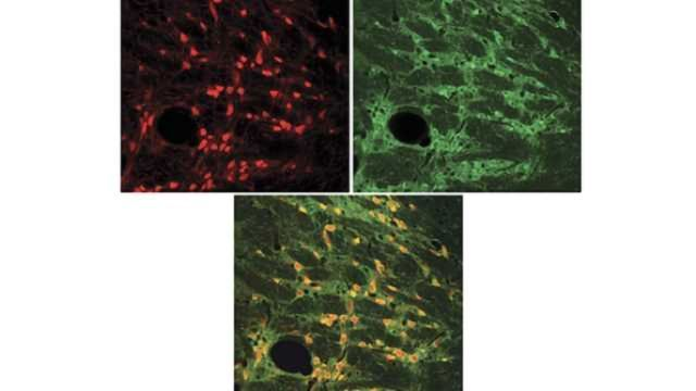Neuronal circuits filter out distractions in the brain