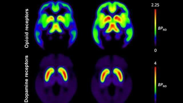Obesity is associated with brain's neurotransmitters