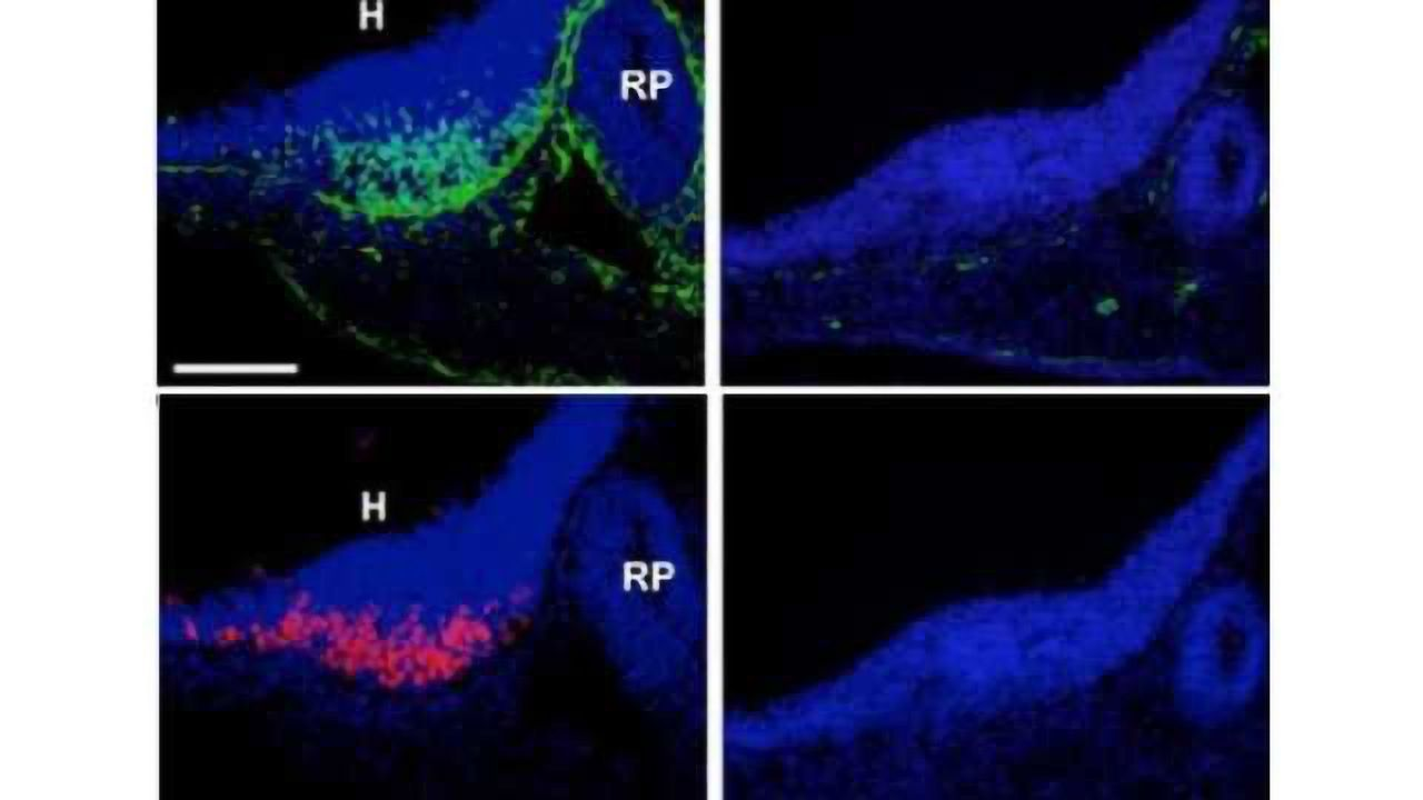 The brain-belly connection: Key genetic triggers found in weight-regulating brain cells