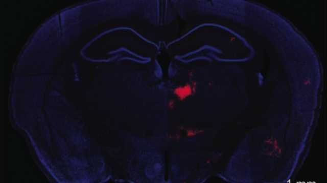 Important communication mechanism discovered between two brain areas implicated in schizophrenia