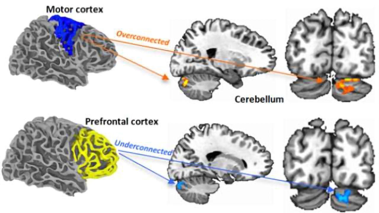 Autism's early neuronal 'neighborhood'