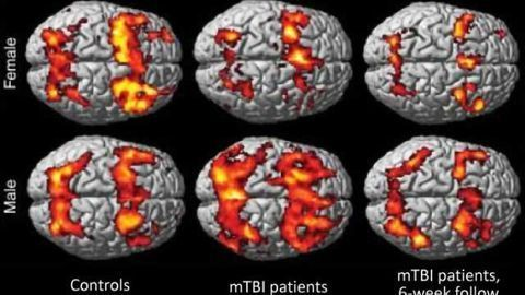 Women show persistent memory impairment after concussion