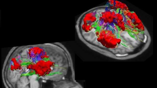 A new atlas of the brain opens up alternative means for studying brain disorders
