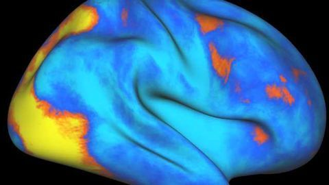 Brain network that controls, redirects attention identified
