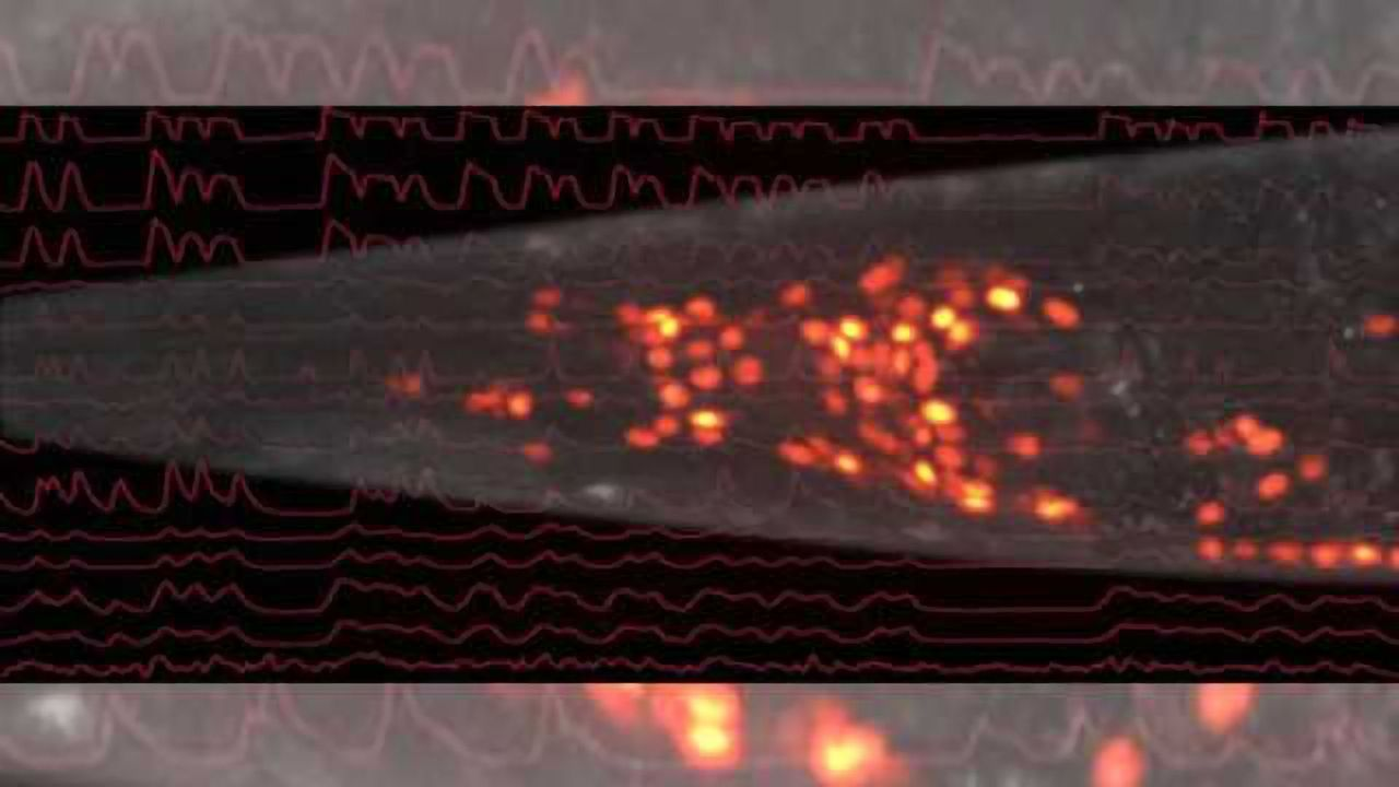 Vienna neuroscientists decode the brain activity of the worm