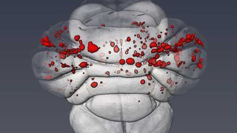 Molecular cause of common cerebrovascular disease described in study