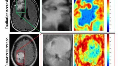Computer program beats physicians at brain cancer diagnoses