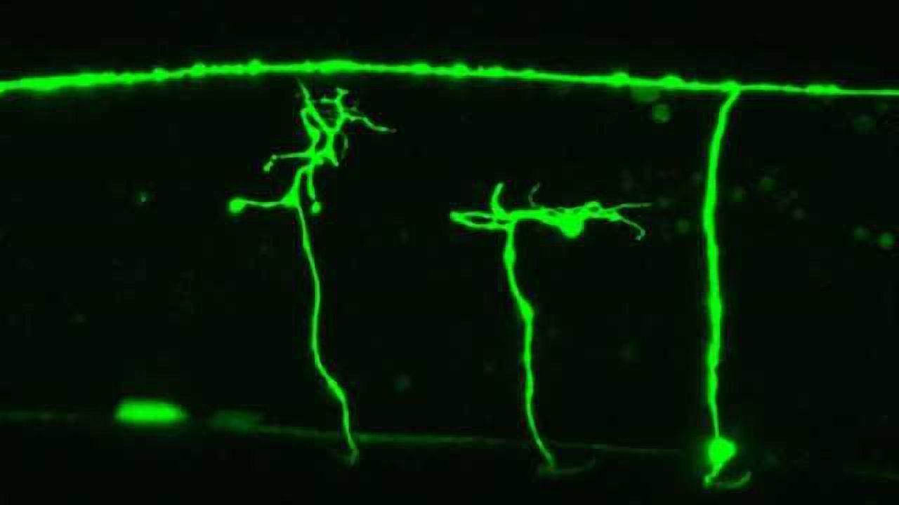 Unraveling roundworm nerve regeneration mechanism could aid nerve injury treatment