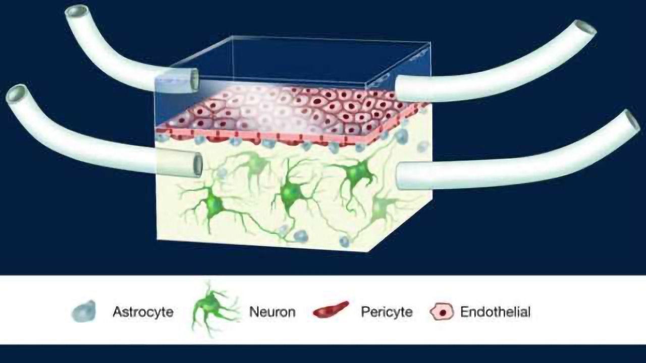 Blood-brain barrier on a chip sheds new light on 'silent killer'