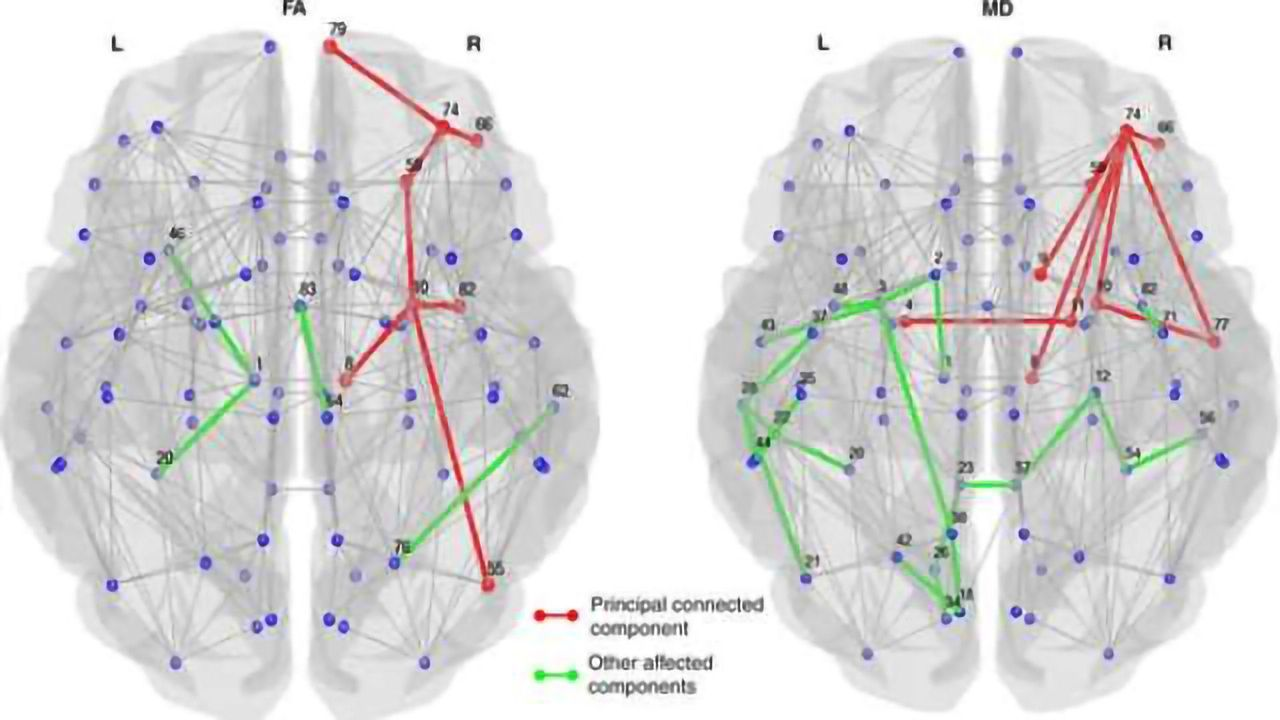 Imaging links structural brain changes and cognitive decline in Parkinson's