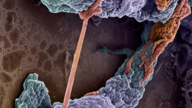 Neural capillaries
