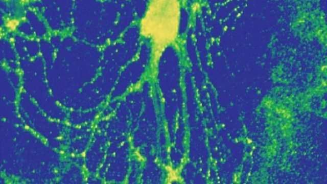 Hippocampal neurons