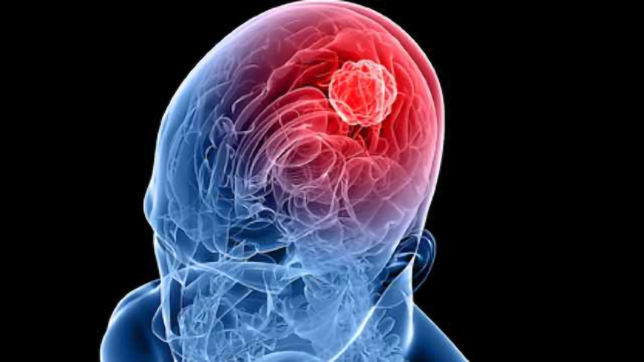 A One Two Punch for Brain Cancer
