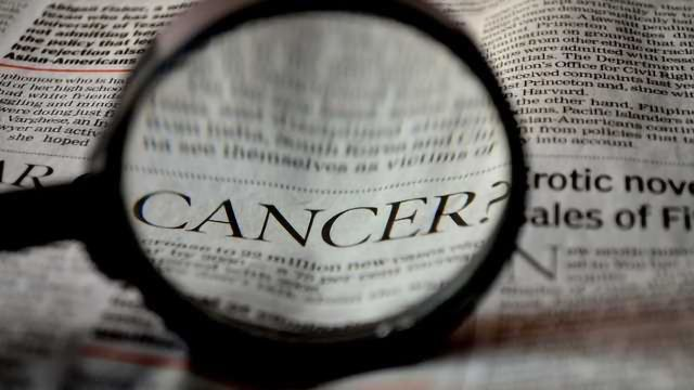 Dynamin1 Found to be in Aggressive Cancer Cells