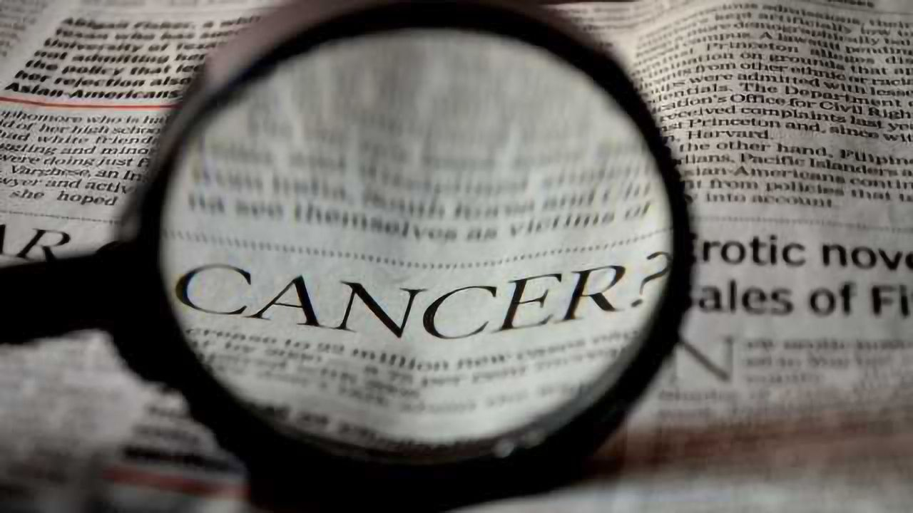 New LC-MS Method to Evaluate Salivary Proteins as Oral Cancer Biomarkers