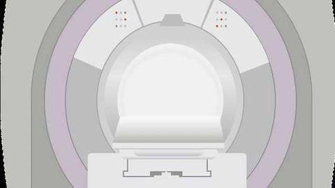 MRI Scan Spots HIV in the Brain