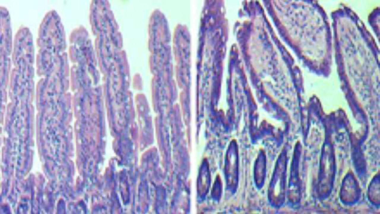 Reversing Aging of Intestinal Stem Cells