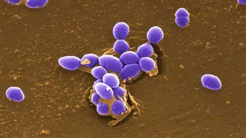 Rapid, Accurate Analysis of Gram Positive Bacterial Stressor Responses
