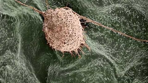 Using Plants as 3-D Scaffolds for Tissue Engineering