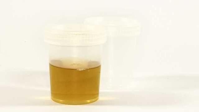 Urine Biomarker Tracks ALS