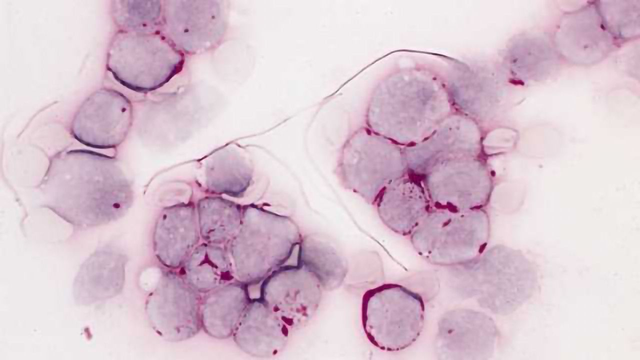 Leukemia Drug Posts Promising Results in Key Trial