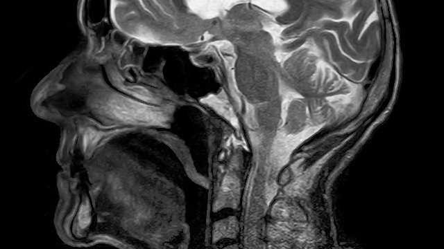 New Technique Enhances the Diagnostic Ability of MRI