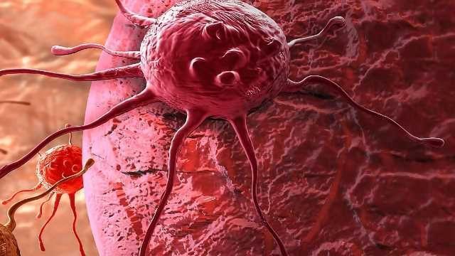 A Biomarker for Prostate Cancer Progression