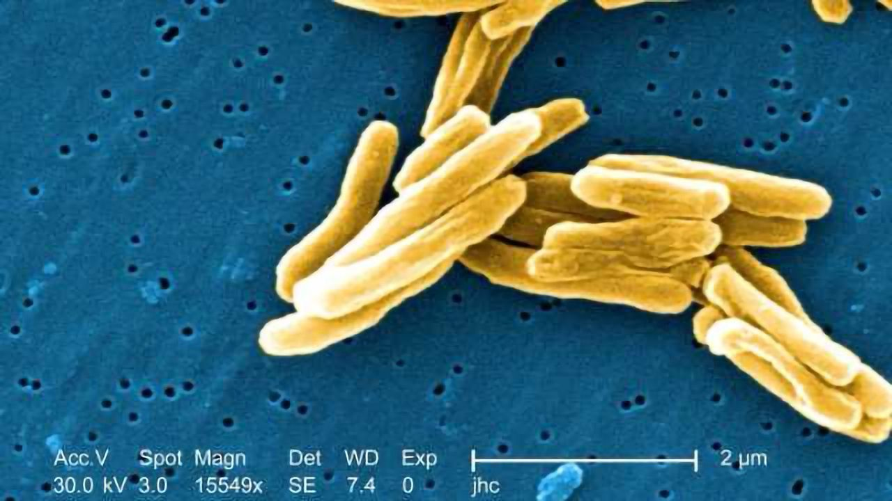 Building Tools to Support TB Research