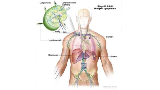 FDA Approves Pembrolizumab for Hodgkin Lymphoma