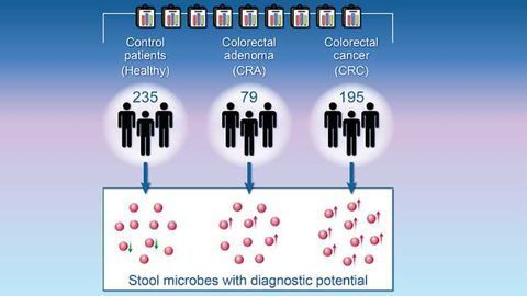 Microbial Markers Could Help Diagnose Colorectal Cancer