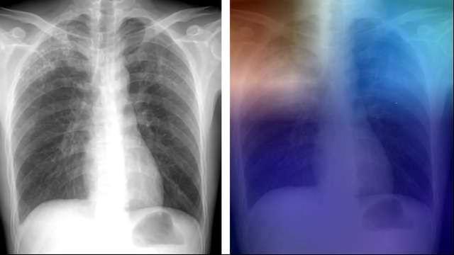 AI Could Help Diagnose TB in Remote Areas