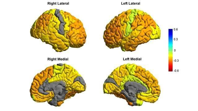 MRI Study of Bipolar Sufferers Reveals Structural Differences