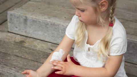 Lack of Filaggrin Triggers Eczema in Human Skin Model