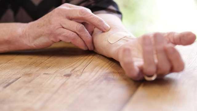 Medherant Appoints Laboratoires Plasto Santé to Manufacture Drug Delivery Patches