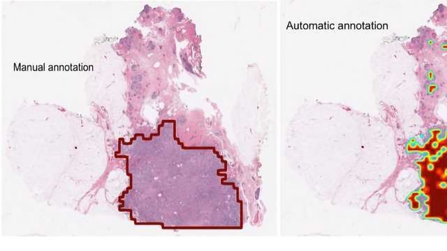 Computer Accurately Identifies Breast Cancers on Digital Tissue Slides