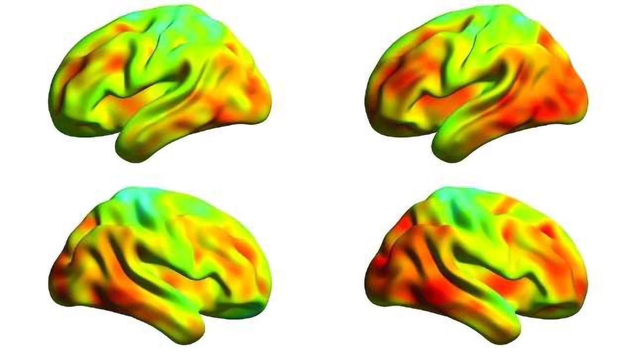Tau Protein Spread in Brains of Alzheimer's Disease Measured
