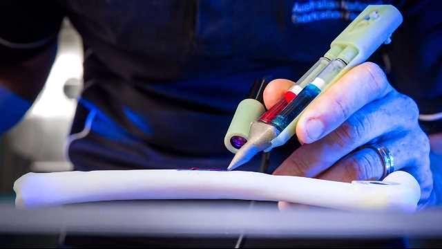 Handheld 3D Printing 'Biopen' Repairs Damaged Cartilage in Sheep