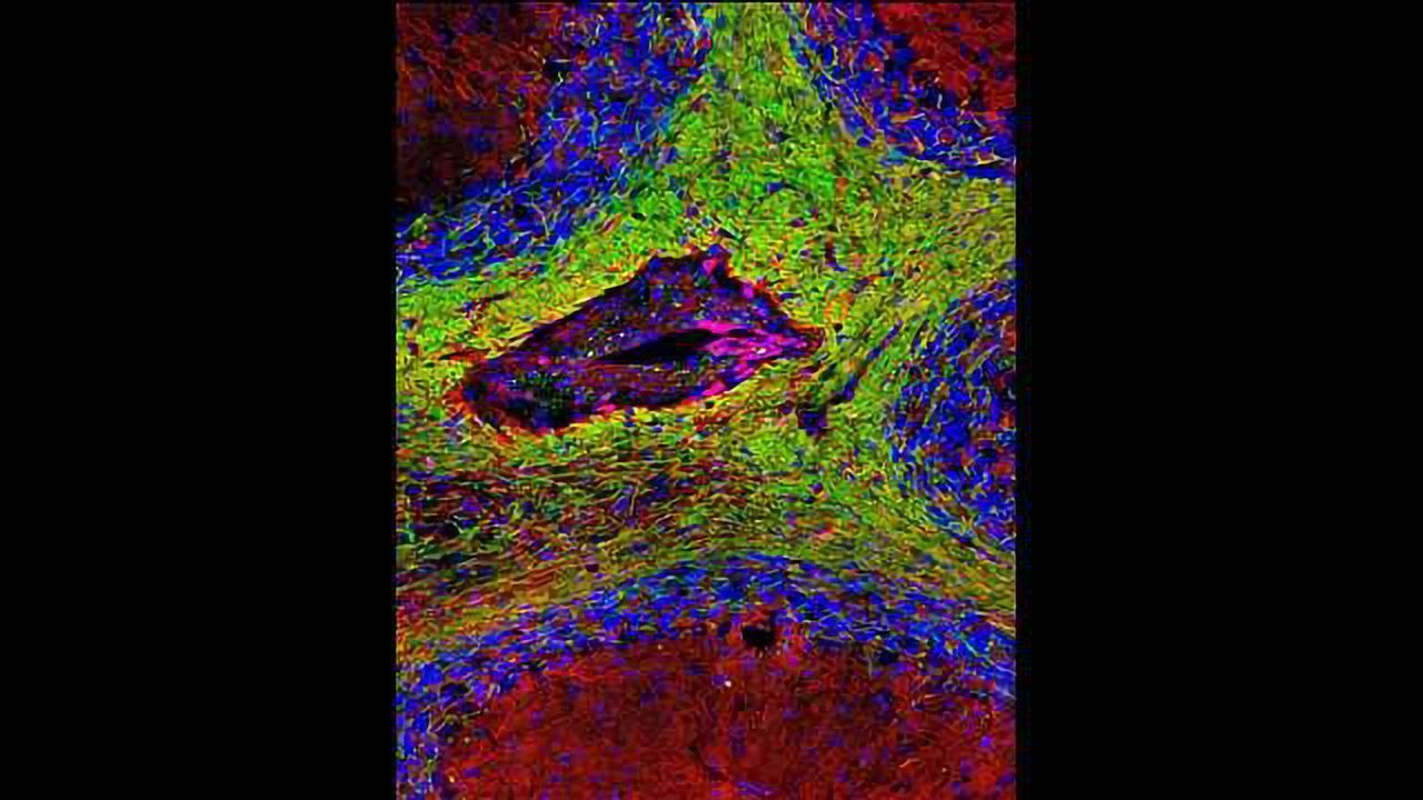 Regulatory T Cells Directly Promote Remyelination