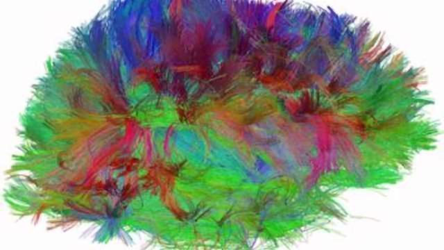 NIH Study Functionally Maps Brain Connections to Predict Autism in Infants